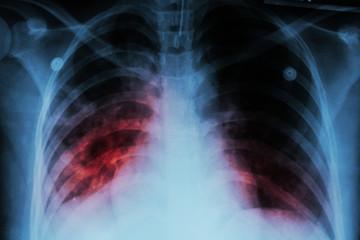 TB di indonesia